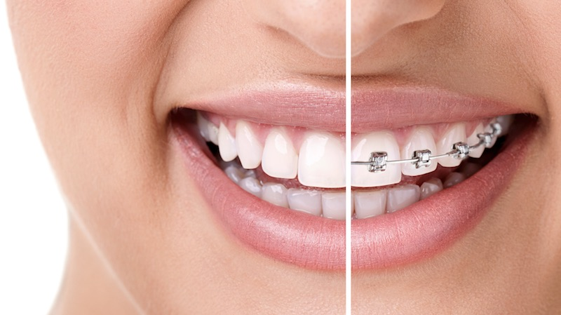 best orthodontist orange county